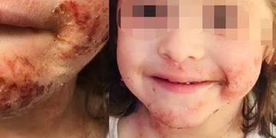 """""""Notre fille de 3 ans a dû être sevrée comme une droguée"""": cette Varoise alerte sur les cas d'eczéma traité aux corticoïdes chez les enfants"""