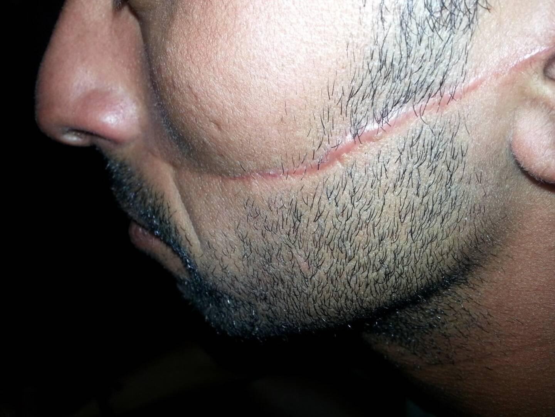 Youssef, 33 ans, ne comprend pas pourquoi son agresseur n'a pas été inquiété par la justice.