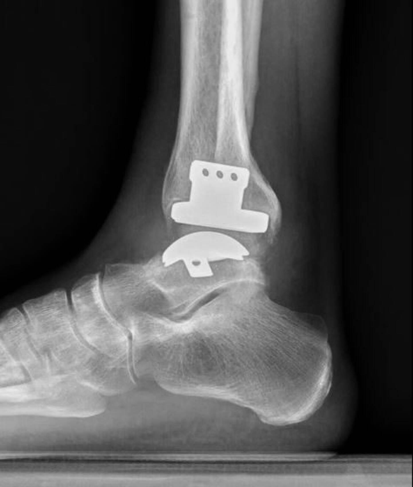 Le choix d'un traitement chirurgical va prendre en compte notamment le mode de vie du patient et ses pratiques sportives. A gauche : une prothèse.