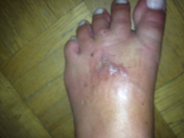 Le pied a été brûlé au second degré
