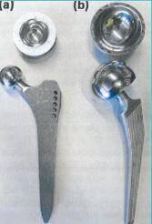 Une prothèse de hanches