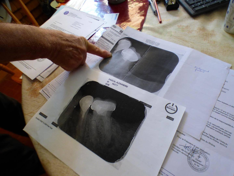 Les radiographies sont précieusement conservées.