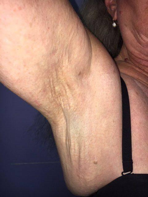 « La maladie a d'abord été décrite comme dermatologique, avant qu'on ne découvre qu'il s'agissait d'un trouble métabolique », indique le Pr Leftheriotis (2e en partant de la droite, entouré de toute l'équipe de médecine vasculaire).