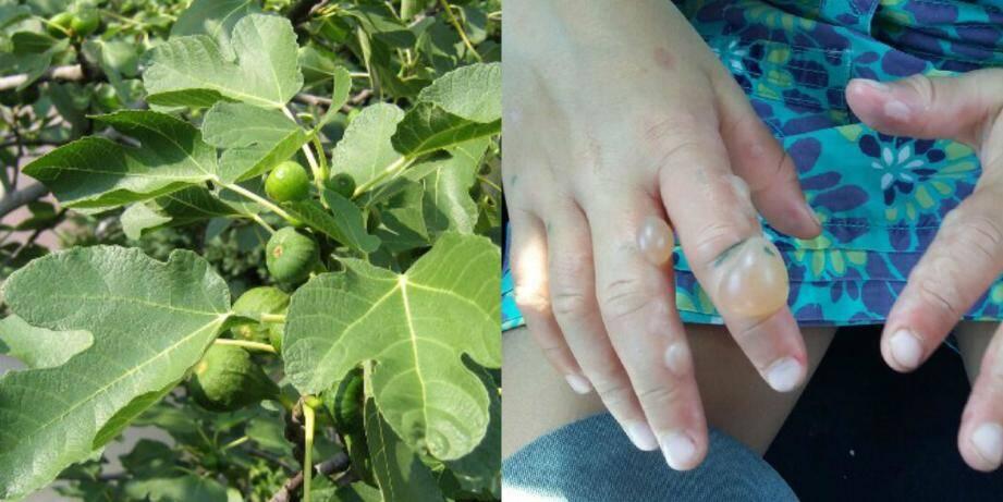 Les mains de Louise après avoir touché des feuilles de figuier