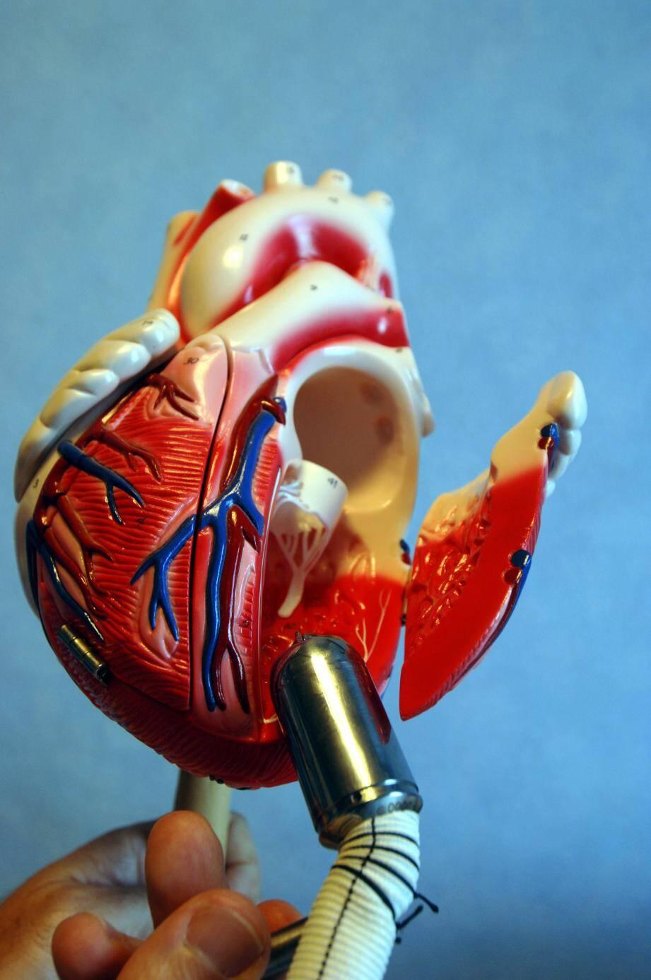 Affection répandue après 80 ans, la fibrillation auriculaire touche une personne sur dix.