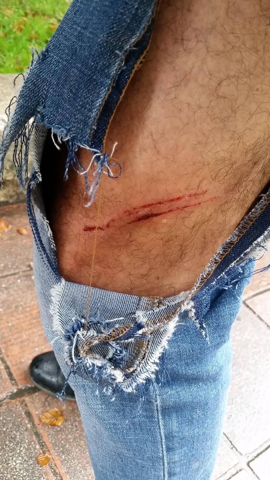 « J'ai eu la chance de porter un jean épais », conclut Frédéric qui a pris en photo son pantalon en lambeaux et l'estafilade laissée par les crocs du chien.(D.R.)