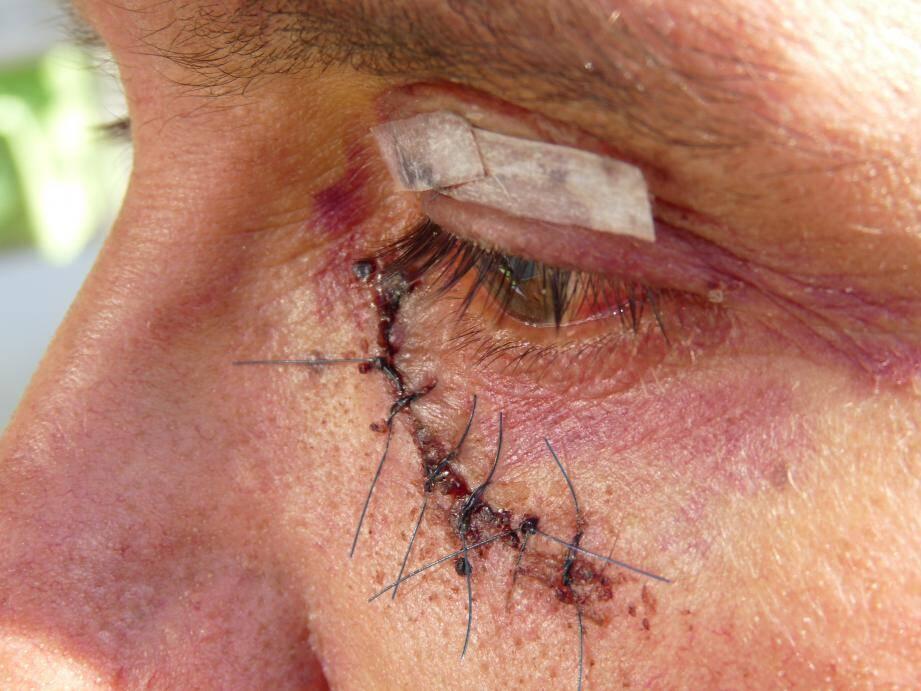 Une impressionnante blessure, avec de nombreux points de suture.