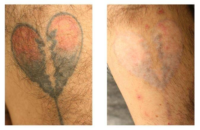 Ici des exemples d'effacement avec le PicoWay, au bout de trois séances. Malgré les progrès dans les techniques de laser, la peau ne redeviendra pas comme elle l'était avant le tatouage.