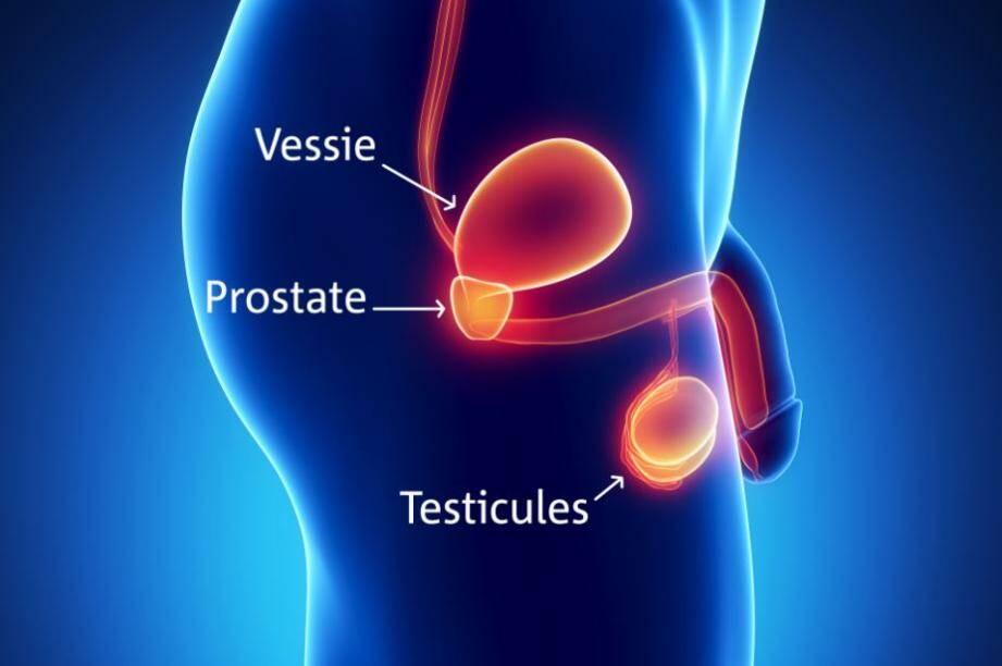 La prostate est une petite glande, de la taille d'une châtaigne située au carrefour urinaire et génital. 90 % des cancers de la prostate se développent à partir des cellules qui constituent le tissu  de revêtement de la prostate (cellules épithéliales).