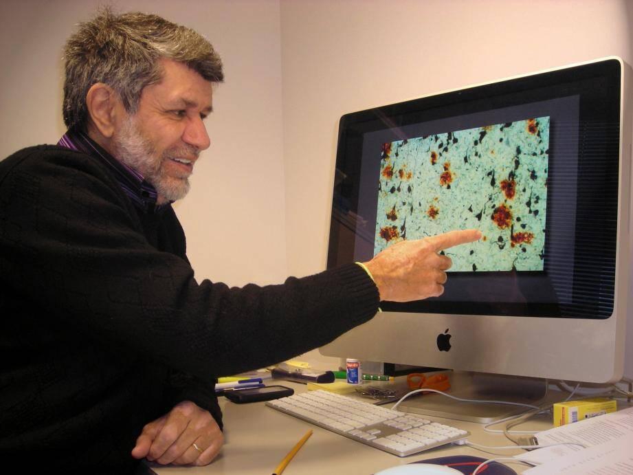 « Les agrégats solubes détruiraient à terme les connexions entre les neurones et aboutiraient  à la destruction de ces cellules », résume Frédérc Checler.