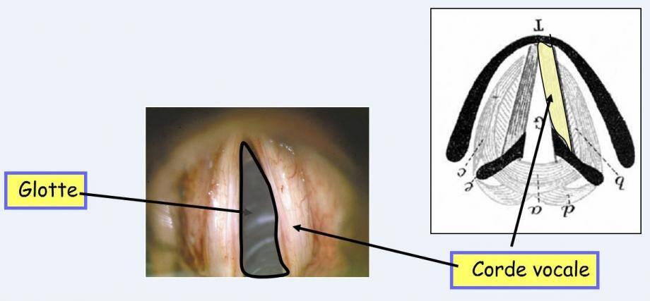 Il est possible de raccourcir la zone de vibration sur la partie antérieure des cordes vocales afin de rendre la voix plus aiguë. L'opération est effectuée grâce au laser.(DR)