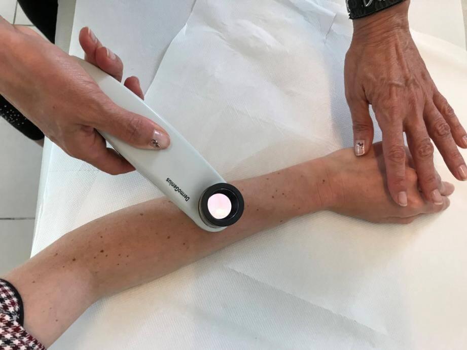 Le dermatoscope permet au médecin d'observer les grains de beauté et de noter d'éventuelles anomalies.