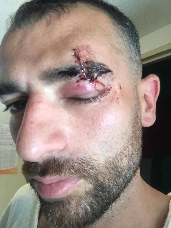 Une pointe très aiguisée du store est violemment tombée sur l'œil du locataire pendant l'état des lieux dès le premier jour de vacances sur le port d'Hyères. (DR)