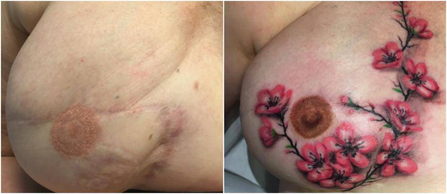 Avant, un tatouage un peu raté et d'énormes cicatrices. Après, un trompe-l'œil et le retour à la vie.