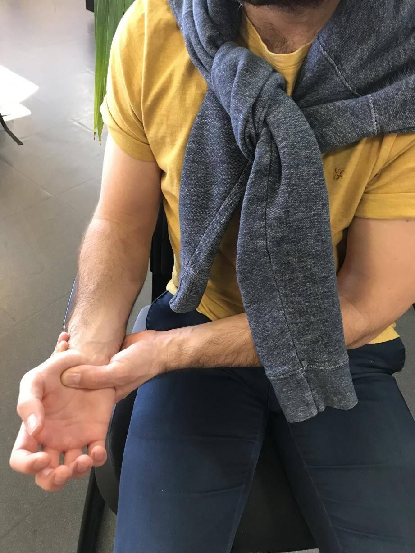 La polyarthrite rhumatoïde débute souvent entre 40 et 60 ans, mais peut aussi arriver, plus rarement, à 20 ans ou à 80 ans. Elle se manifeste d'abord au niveau des mains et des poignets. Lorsqu'elle  progresse, elle peut atteindre les chevilles, les hanches, etc.