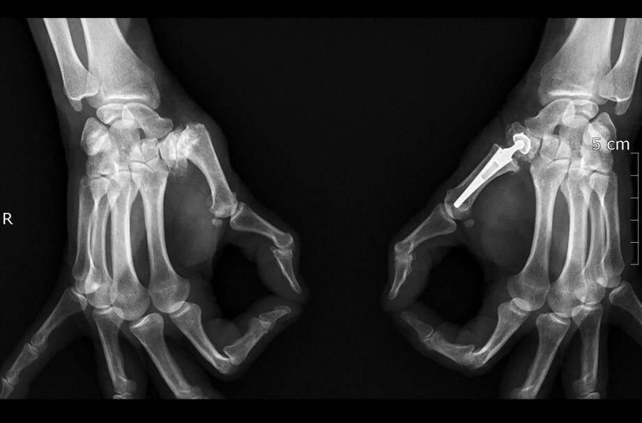 Ci-dessus, on observe que le pouce à gauche est déformé, contrairement au second qui a été opéré.