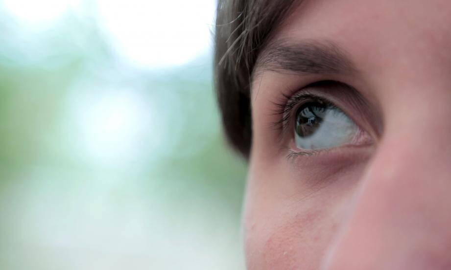 Les sclérotiques bleues - le blanc de l'œil est bleuté - font partie des signes d'une maladie osseuse, l'ostéogenèse imparfaite en particulier. La couleur est sans rapport avec la sévérité de la pathologie.