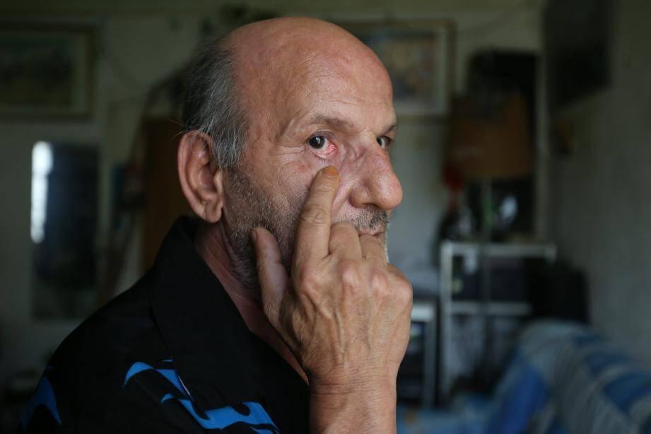 À l'âge de neuf ans, il reçoit une balle de carabine dans l'œil, pourtant il ne porte aucune cicatrice sur lui.