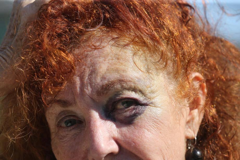 Trois jours après l'incident, le visage de cette Niçoise est encore bien marqué.