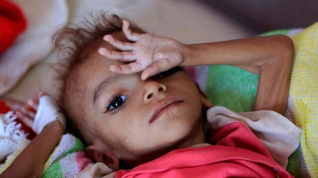 La malnutrition touche des milliers d'enfants yéménites.