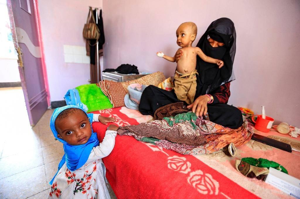 Des enfants souffrant de malnutrition dans un hôpital de Sanaa, au Yémen, le 22 juin 2019
