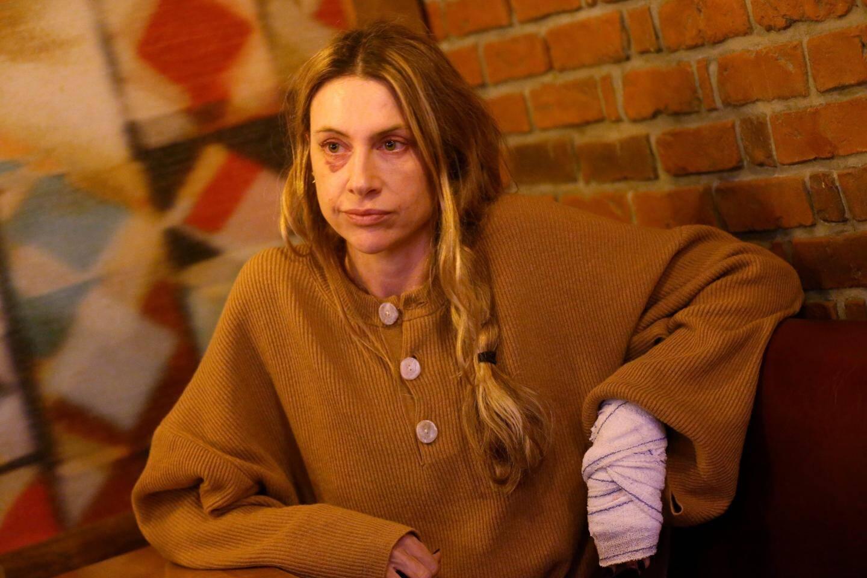 Pauline Foti, généraliste pour SOS Médecins, porte les stigmates de son agression, jeudi soir aux Moulins.
