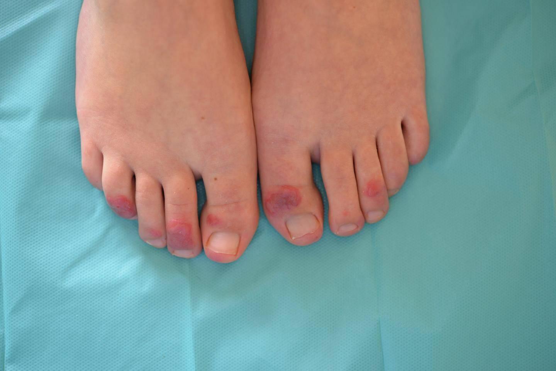 C'est essentiellement au niveau des pieds que les engelures se manifestent, même si plusieurs patients présentaient des engelures aussi au niveau des mains.