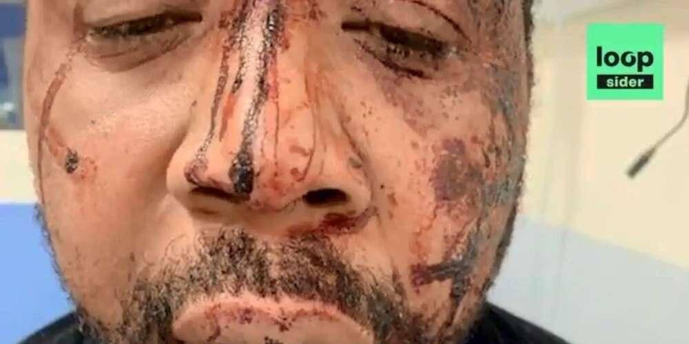Le visage tuméfié de la victime.