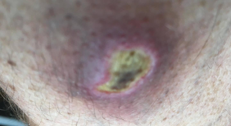 La nécrose gagne du terrain et la plaie s'infecte.