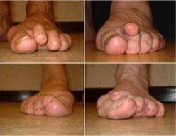 65% des Français souffrent des pieds. Or il est possible de corriger un mauvais alignement des orteils dans la prime jeunesse.