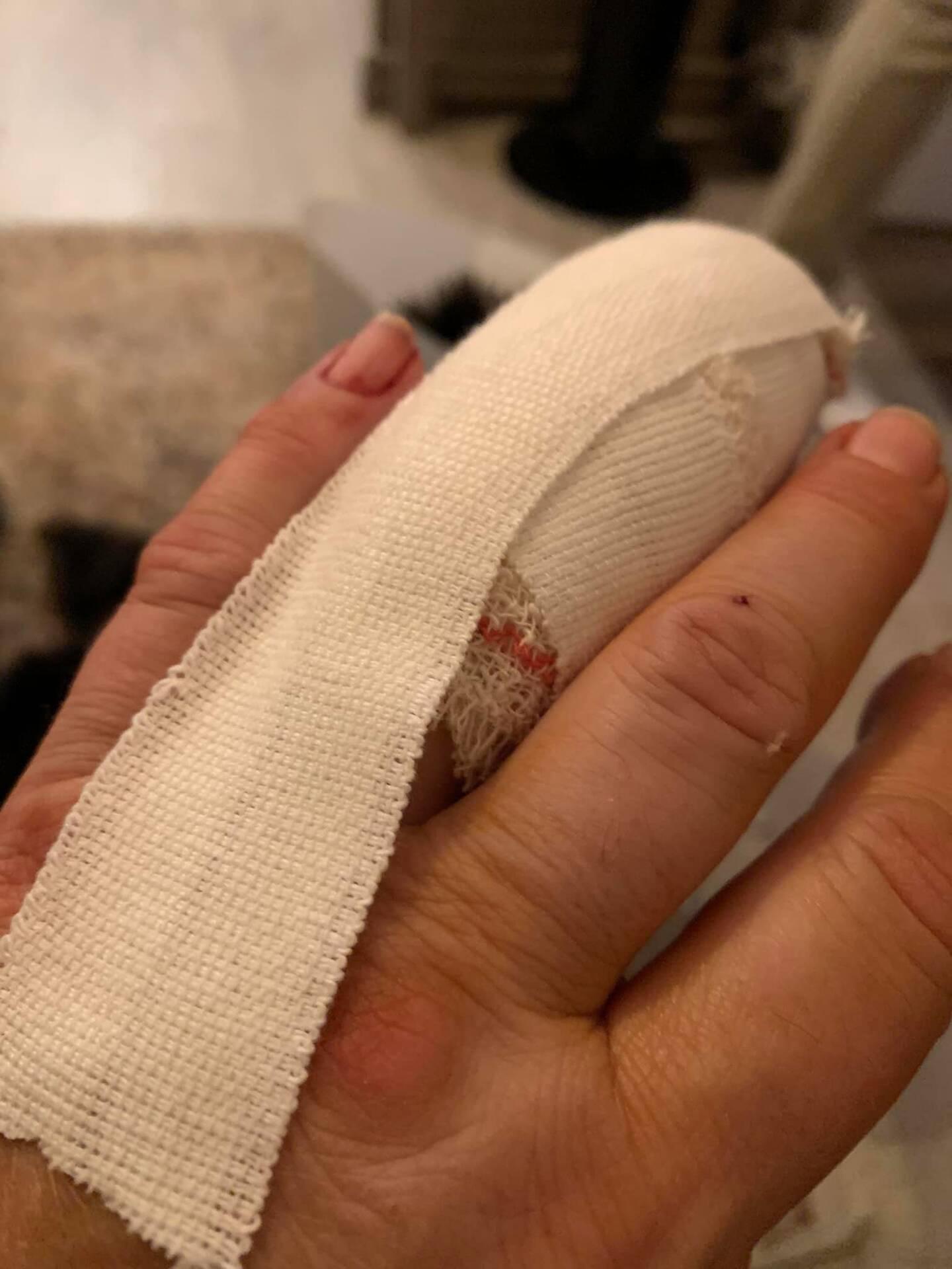 La propriétaire a été blessée au doigt et transféré à la clinique Oxford de Cannes.